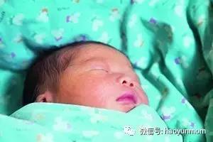 宝宝胎记-好孕妈妈